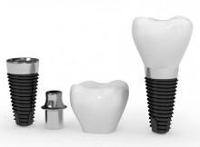 Teeth Crowns
