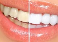 zoom-teeth-whitening-process