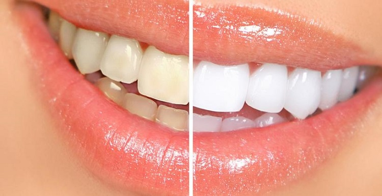 zoom-teeth-whitening-process