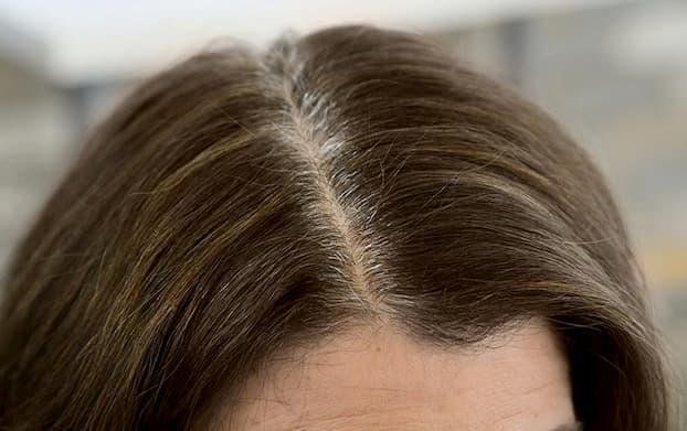 stubborn-gray-hair